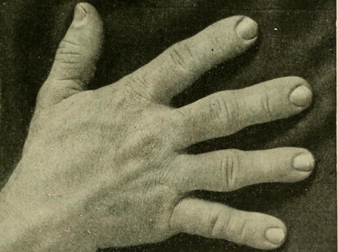 Bàn tay màu xám