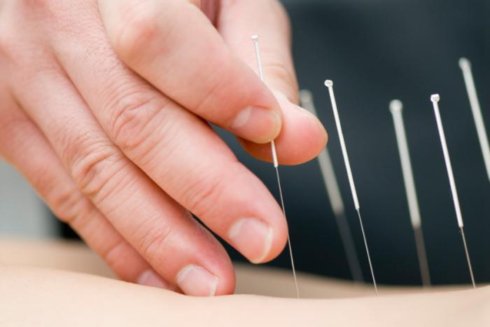 igły do akupunktury