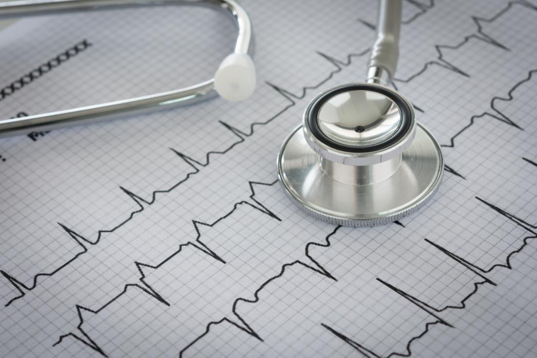 Steposkop auf einem EKG