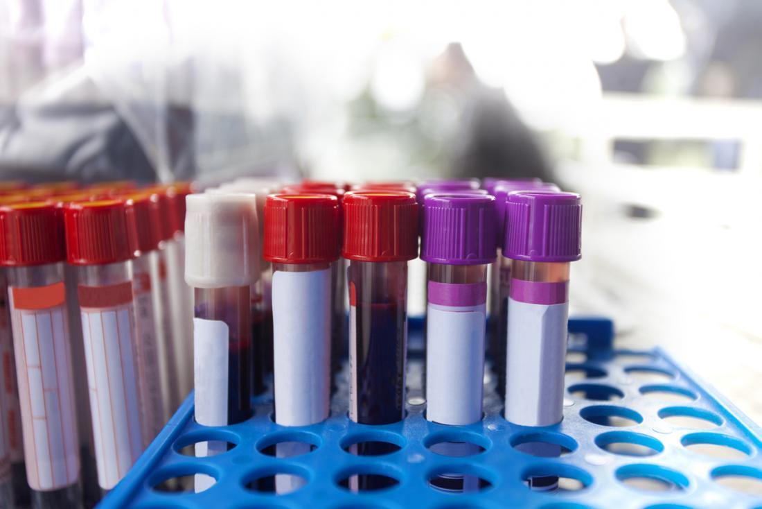Fiolki do testów krwi.