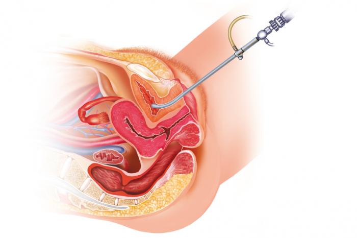 Cistoscopia femminile