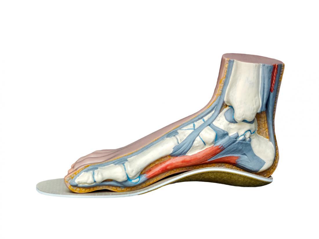 Le solette che indossano possono aiutare a sostenere il piede e ridurre il dolore.