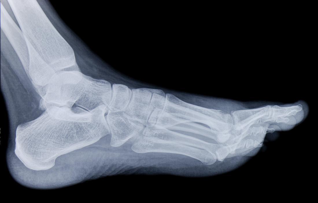 Đau cổ chân gây đau ở chân bàn chân.