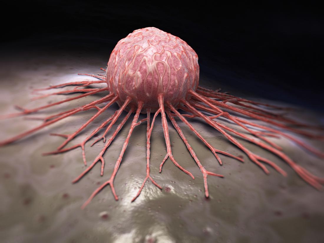 Tumor auf Gewebe