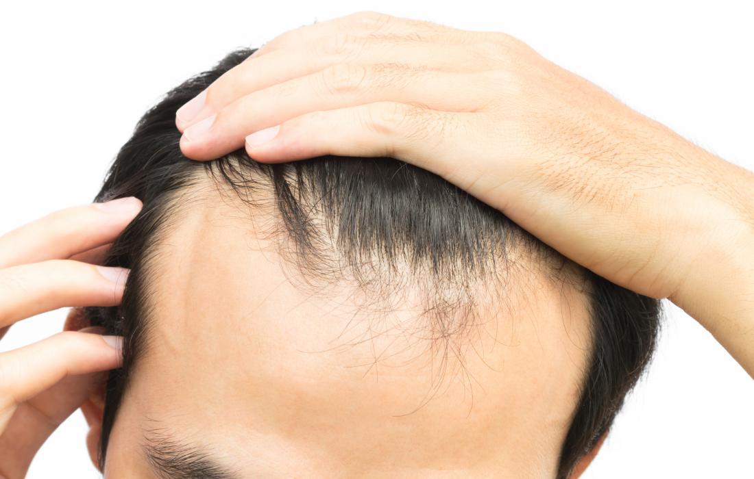 Người đàn ông với sợi tóc rút gọn
