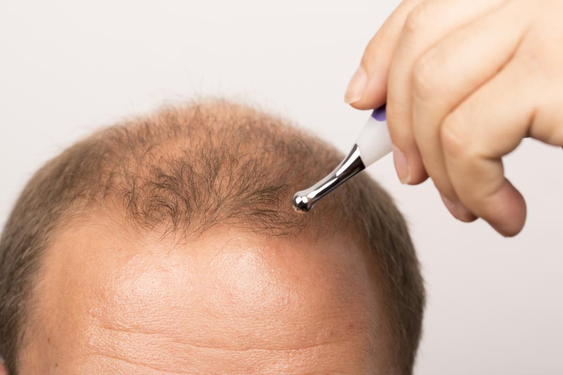 Saç dökülmesini tedavi ve saç çizgisi çeken adam.