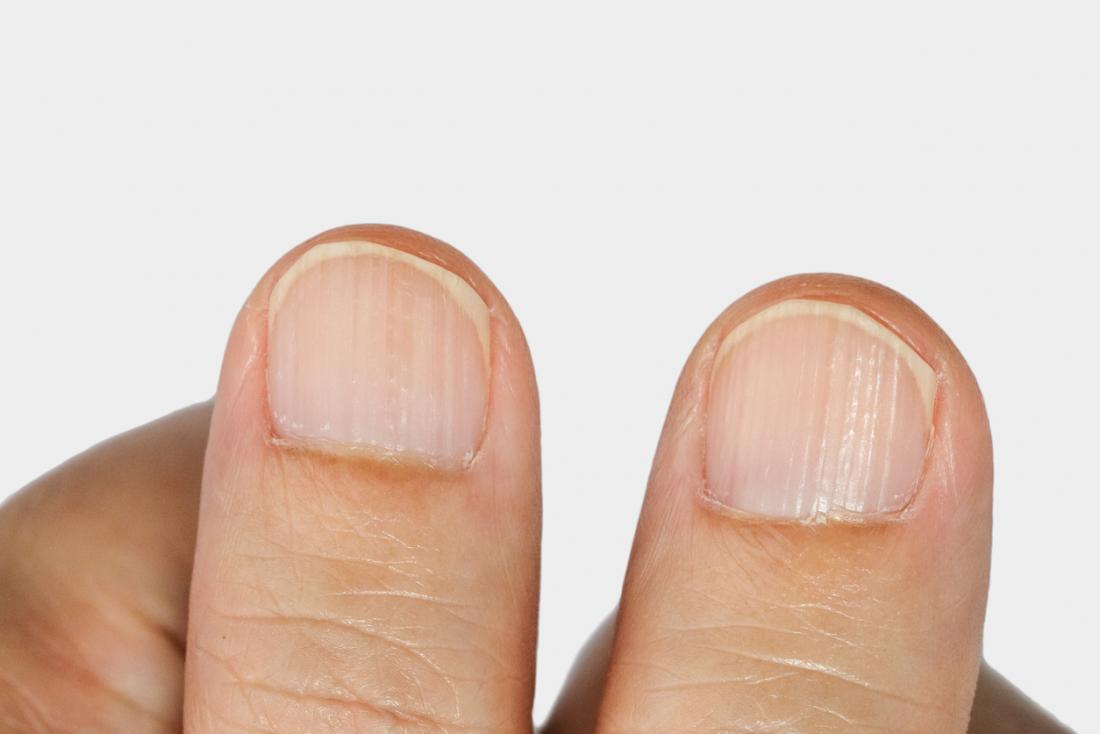 Ridges on the fingernails.