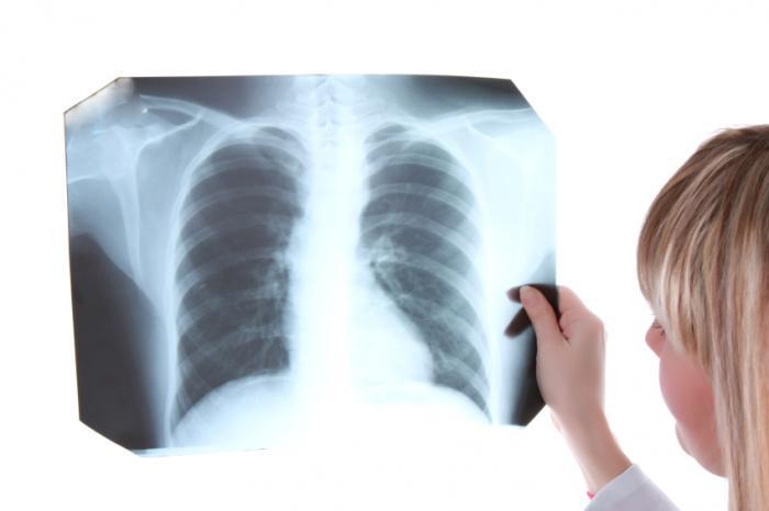 医者、X線を見る