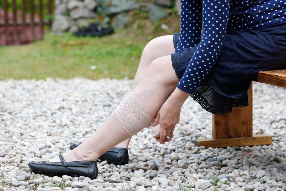 Жена, поставяща компресия, за да третира варикозни вени.