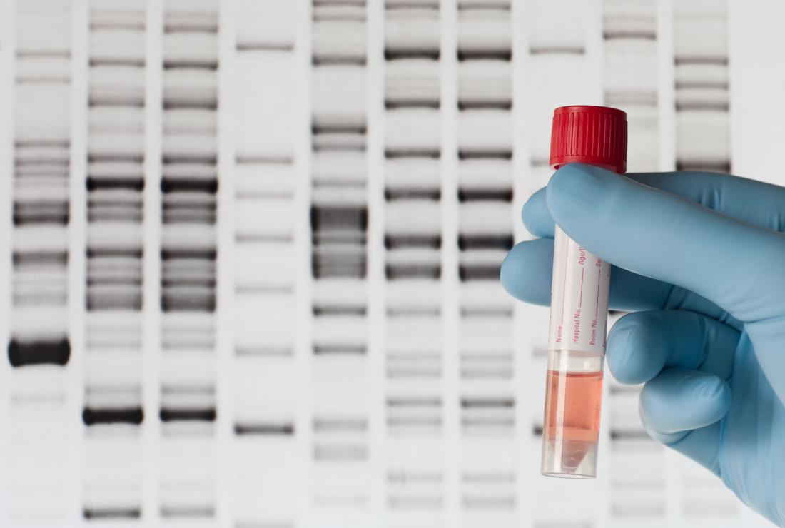 DNA testi için kullanılan kan örneği,