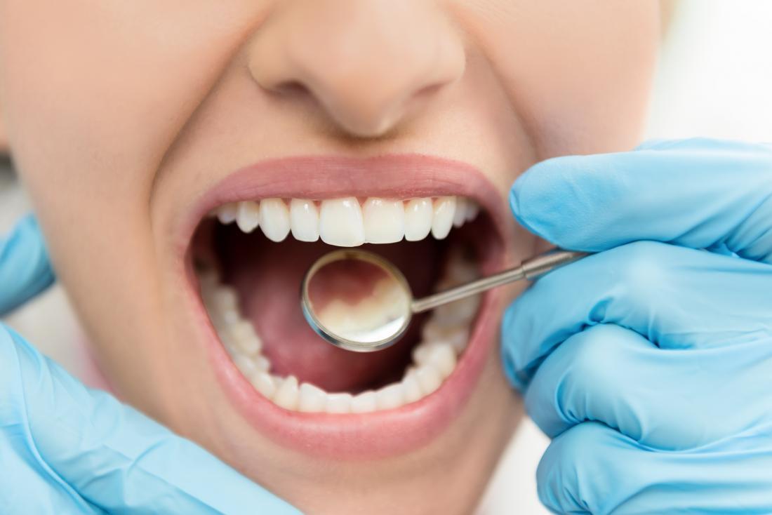 Kobieta o próchnicy zbadane przez dentystę, chcąc skorzystać z domowych środków zaradczych.