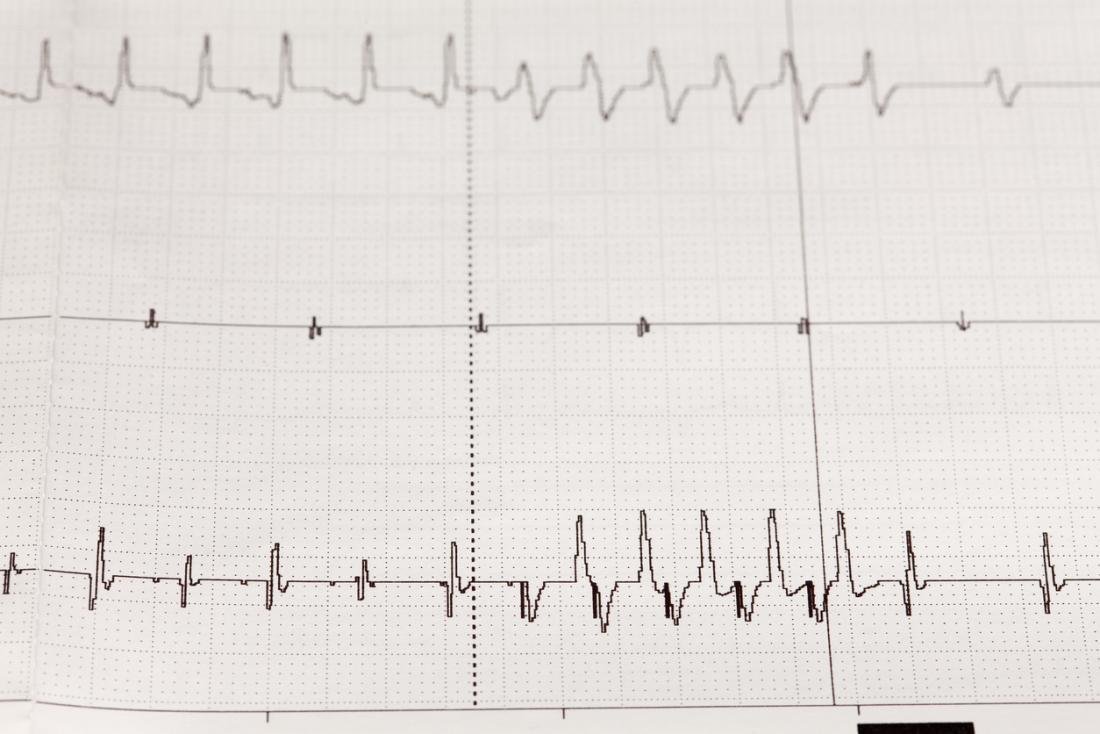 loạn nhịp tim trên điện tâm đồ