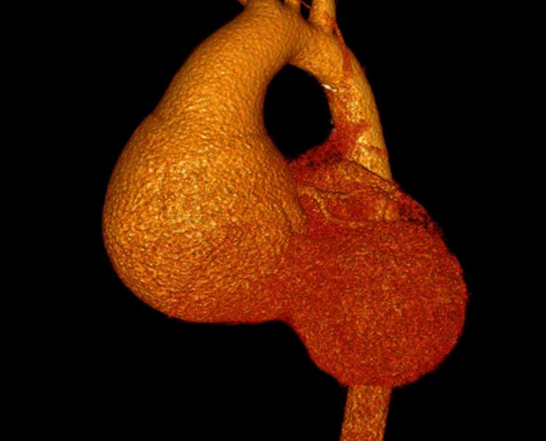 Anévrisme ascendant de l'aorte