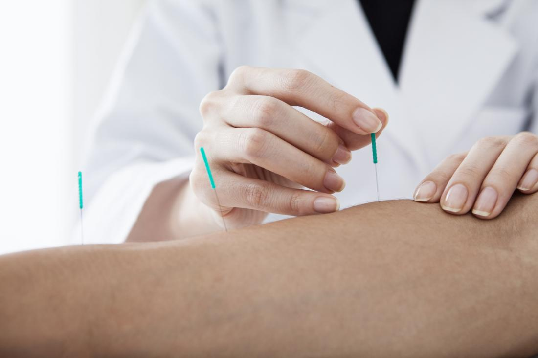 Akupunktura jest alternatywną formą ulgi w bólu