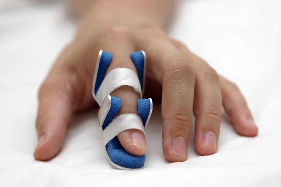 Dedo quebrado em uma tala.