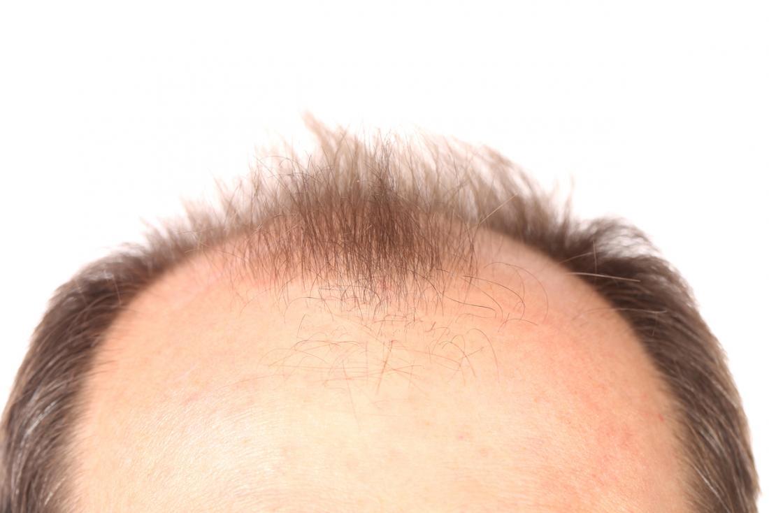 parte superior da cabeça com linha fina receding