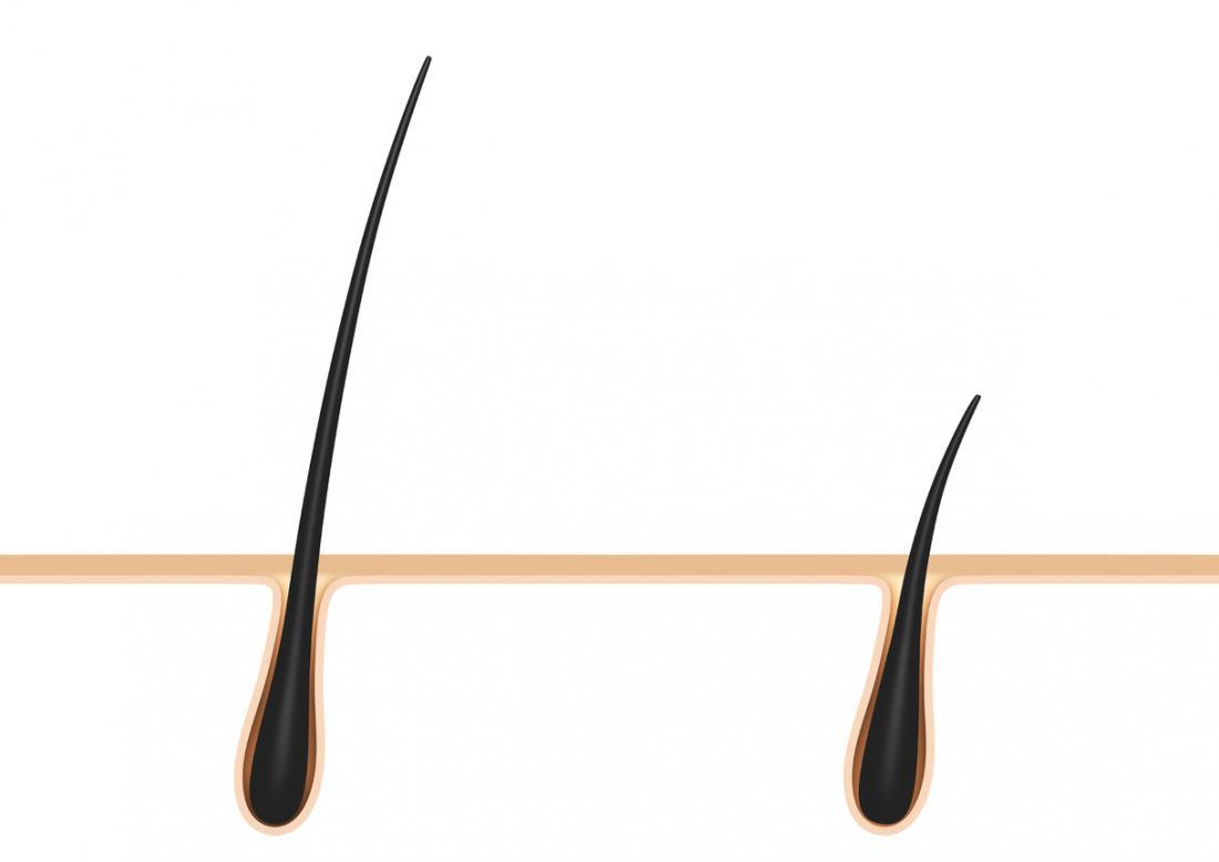 follicolo pilifero sul cuoio capelluto