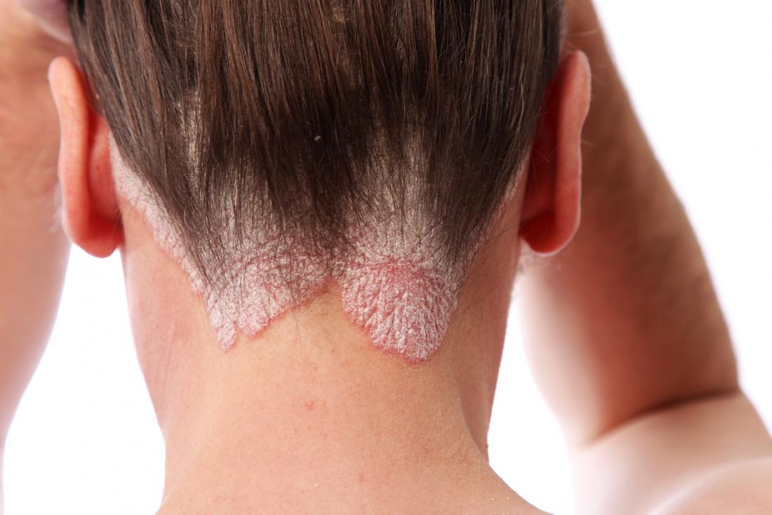 Đầu của con người với bệnh vẩy nến