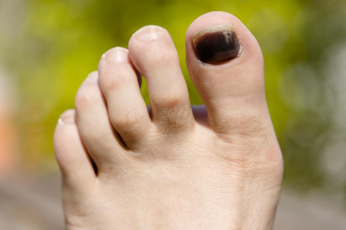 черен нокът на краката