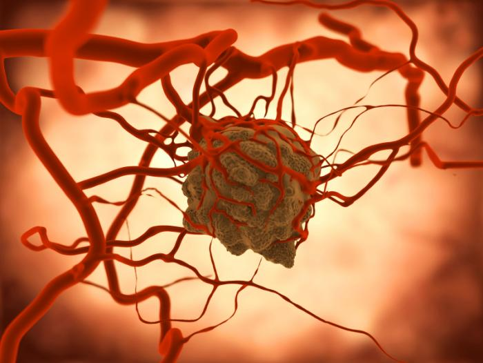Hình ảnh của một khối u.