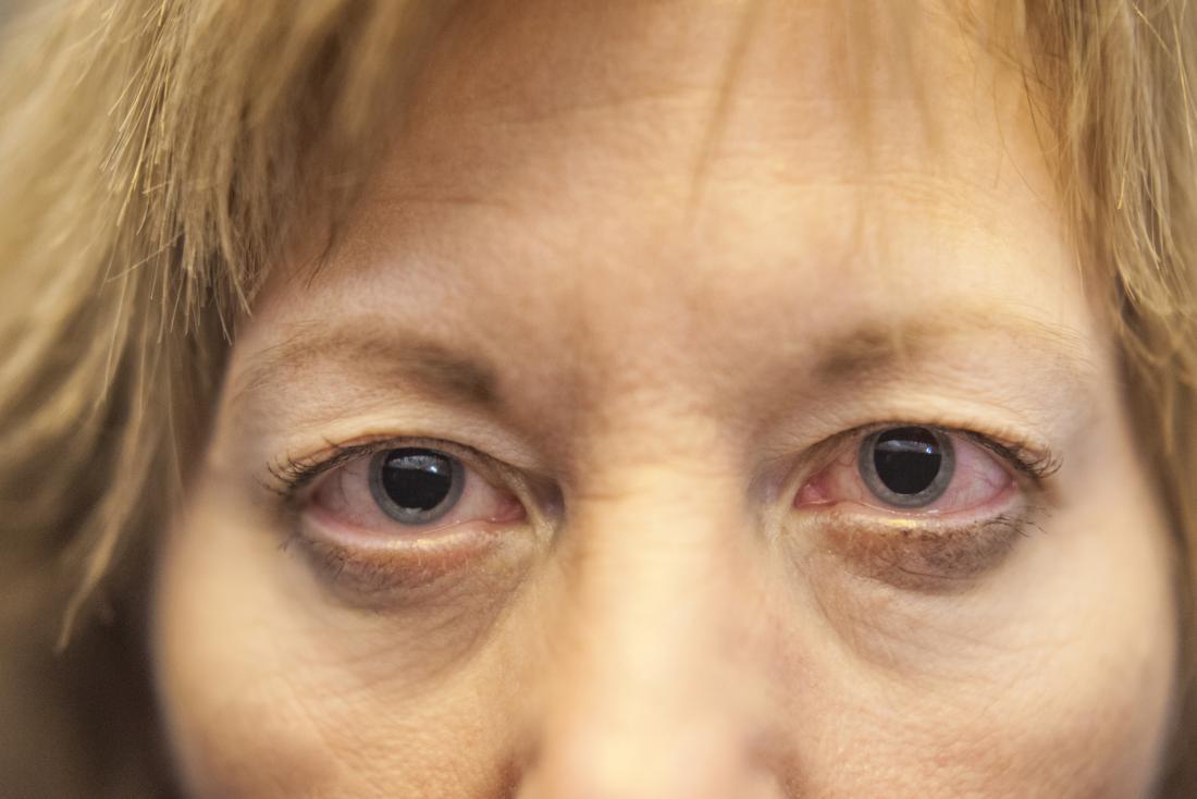 Очите могат да станат червени и раздразнени.