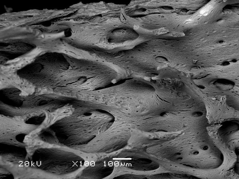 Crédito de imagem de osso de microscópio eletrônico Sbertazzo
