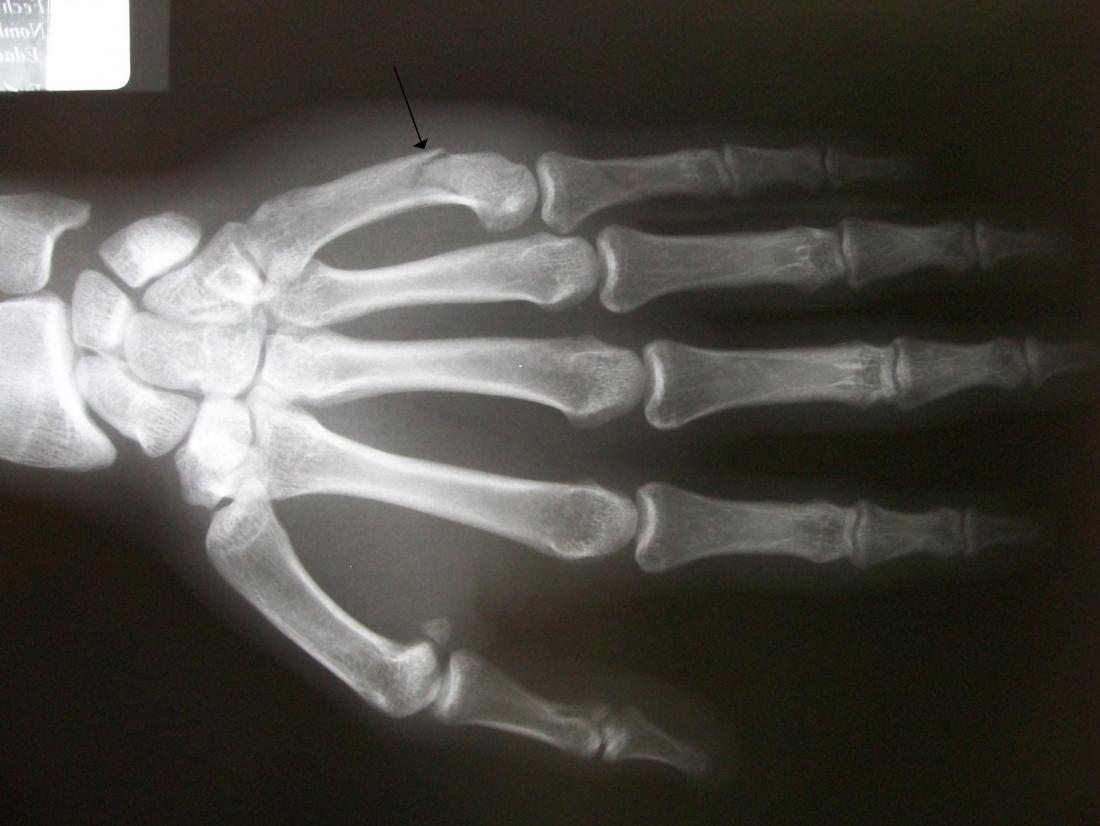 A fratura de um boxeador pode ser diagnosticada usando um raio-x. Crédito da imagem: Roberto J. Galindo, (23 de fevereiro de 2010).