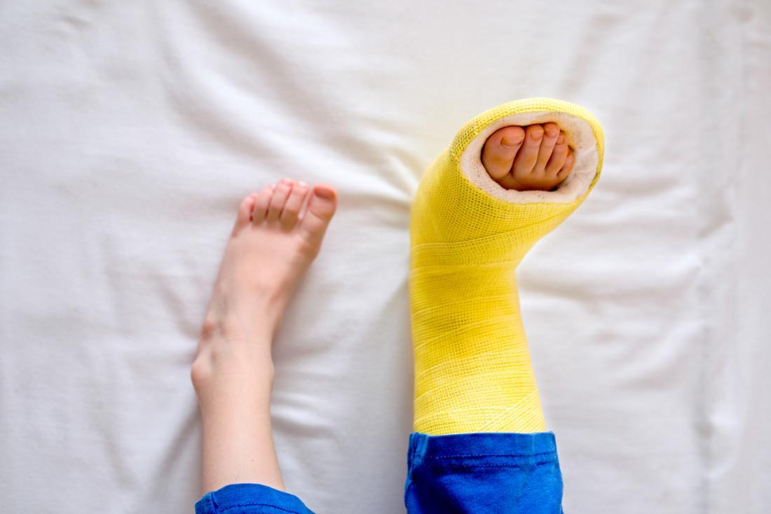 Kind mit einem gebrochenen Fuß Gelbguss