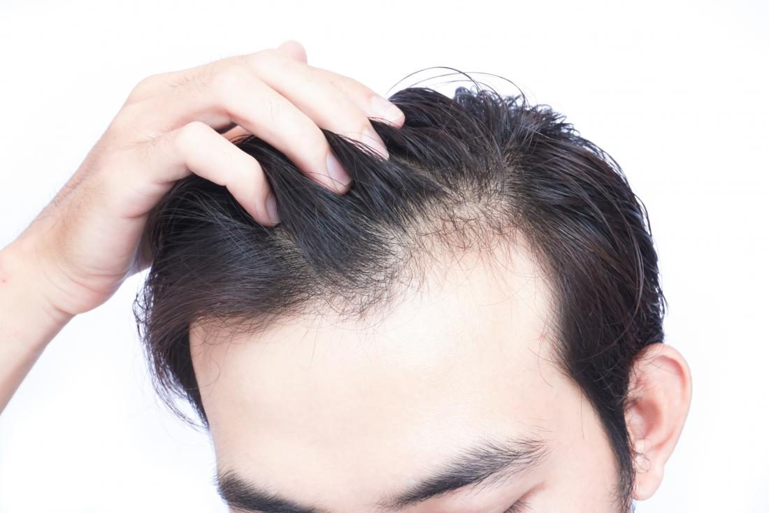 Vitamin-D-Mangel kann zu Haarausfall führen