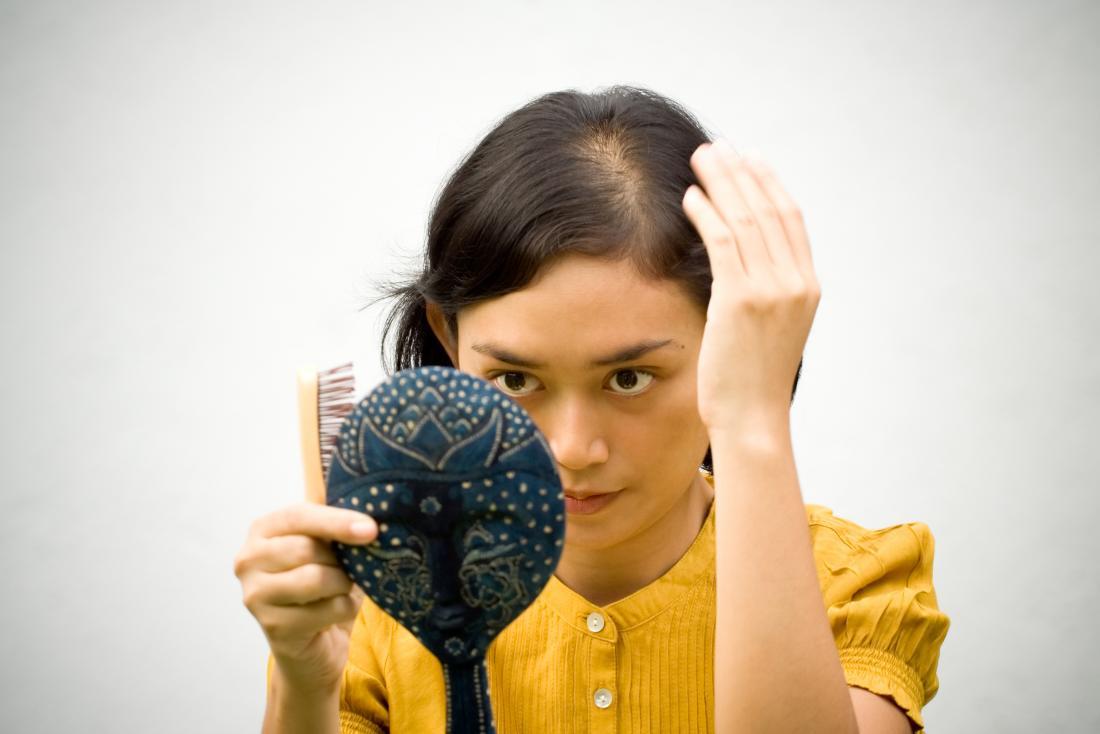 Donna che osserva nello specchio con perdita di capelli di mancanza di ferro