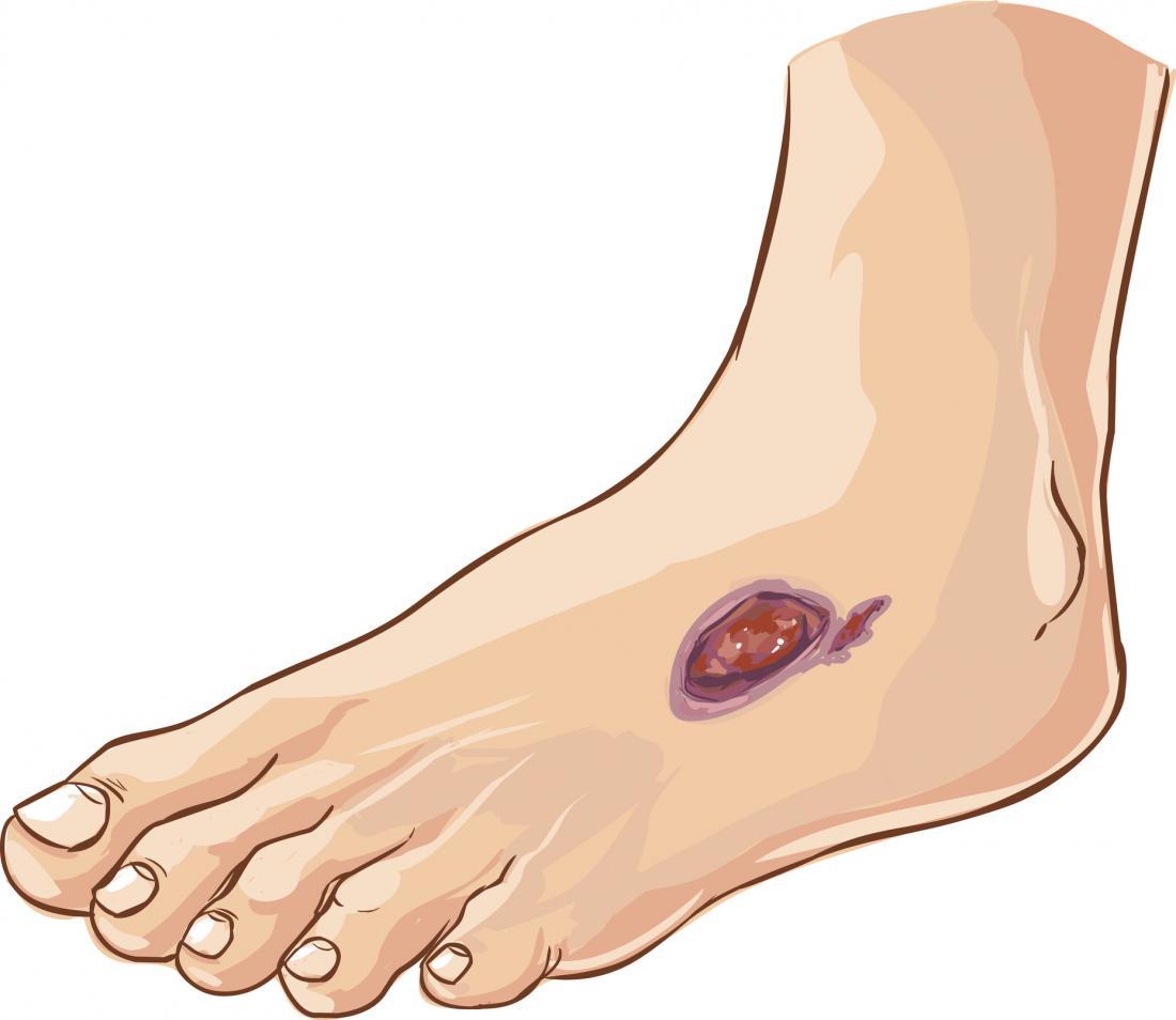 илюстрация на раната, която не се лекува поради диабетна невропатия