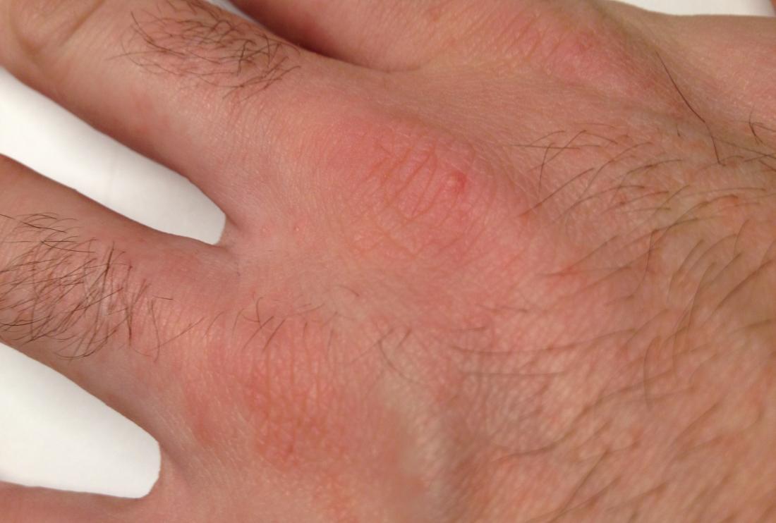 Krätze an der Hand verursacht durch Räude in Menschen
