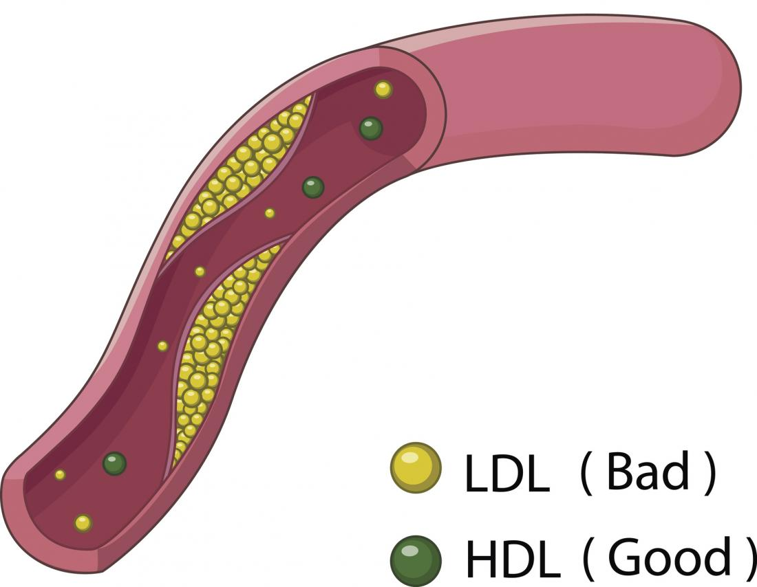 illustration de LDL et HDL
