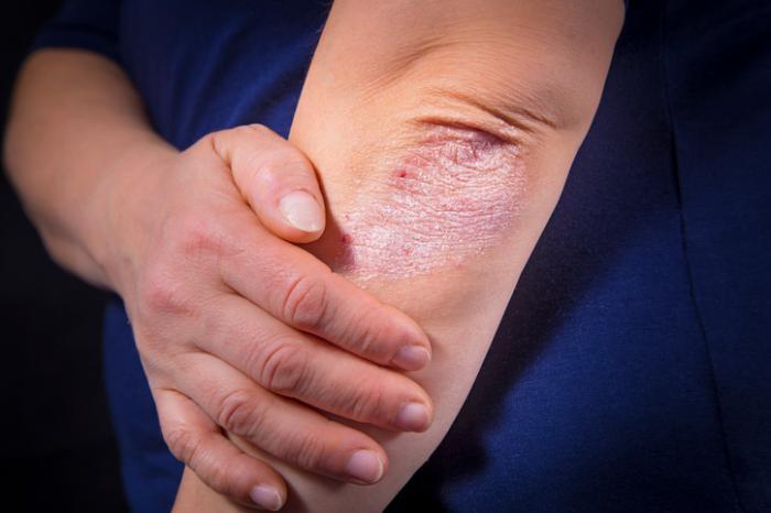 Psoriasis sur un coude gauche