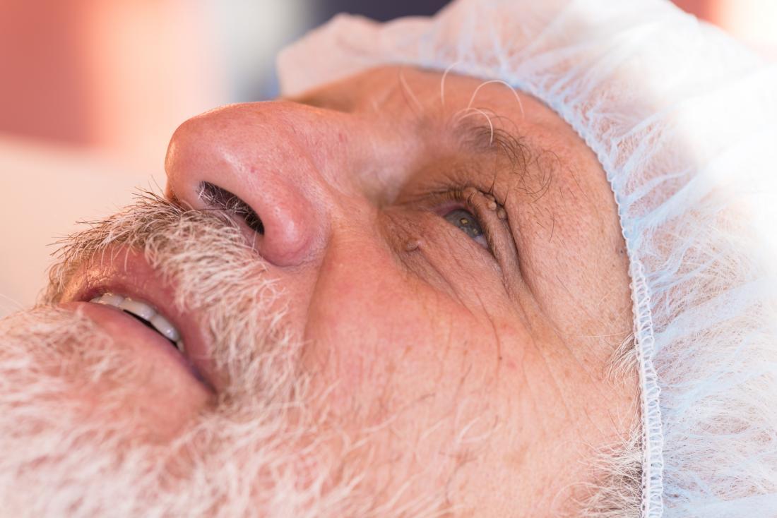 A remoção da marca da pele é perigosa ao redor dos olhos