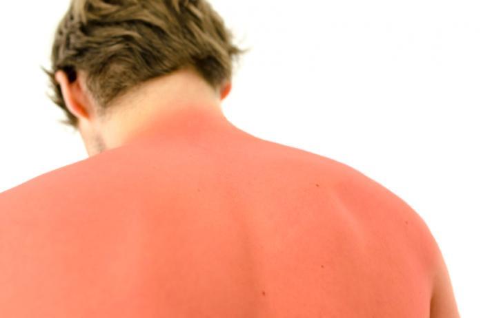 Un homme avec un coup de soleil.