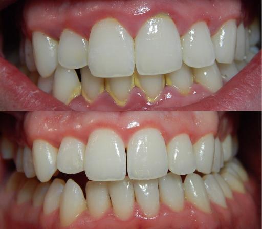 Zähne vor und nach dem Skalieren