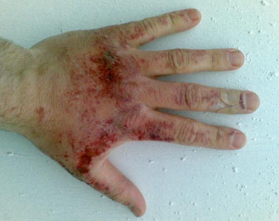 brûlure chimique sur une main gauche de l'homme