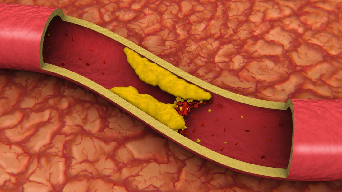 une artère bouchée