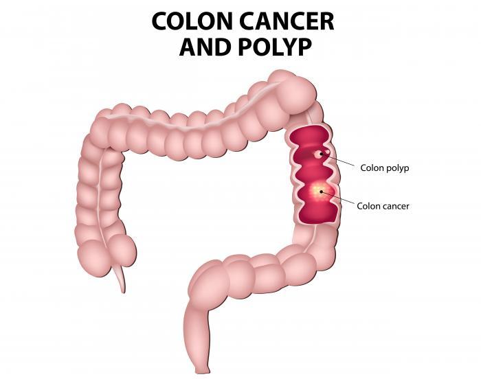 Avere polipi aumenta il rischio di cancro del colon-retto.