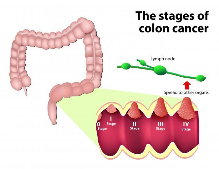 Le fasi del cancro al colon