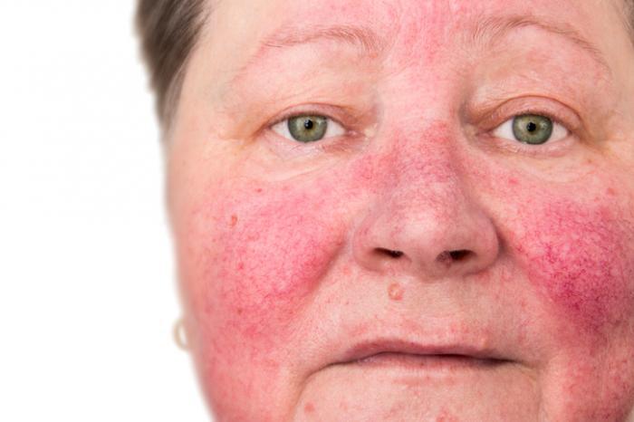 bệnh rosacea trên mặt