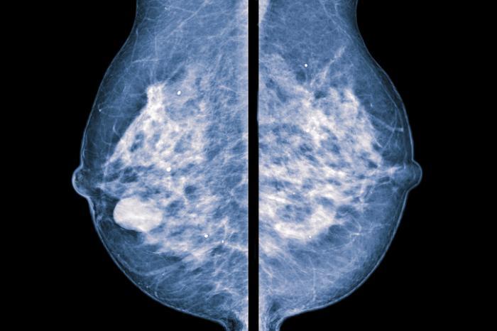 [bilaterales Mammogramm]