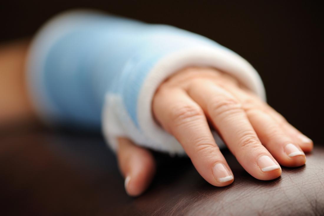счупена ръка