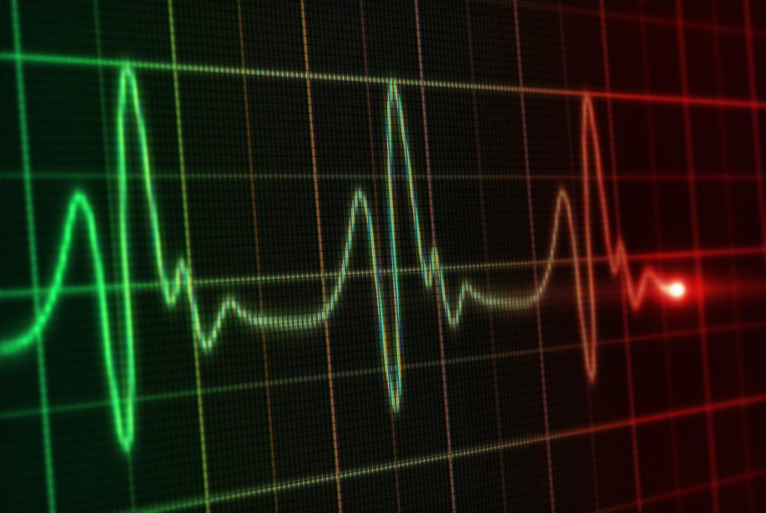 Symptome einer Herzinsuffizienz können unregelmäßige und schnelle Herzschläge sein.