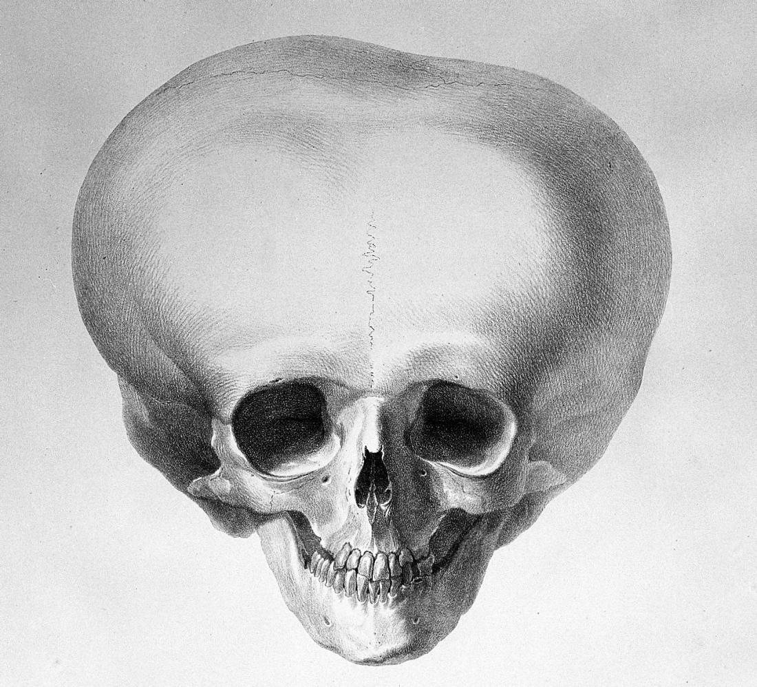 Schädel der Person mit Hydrocephalus