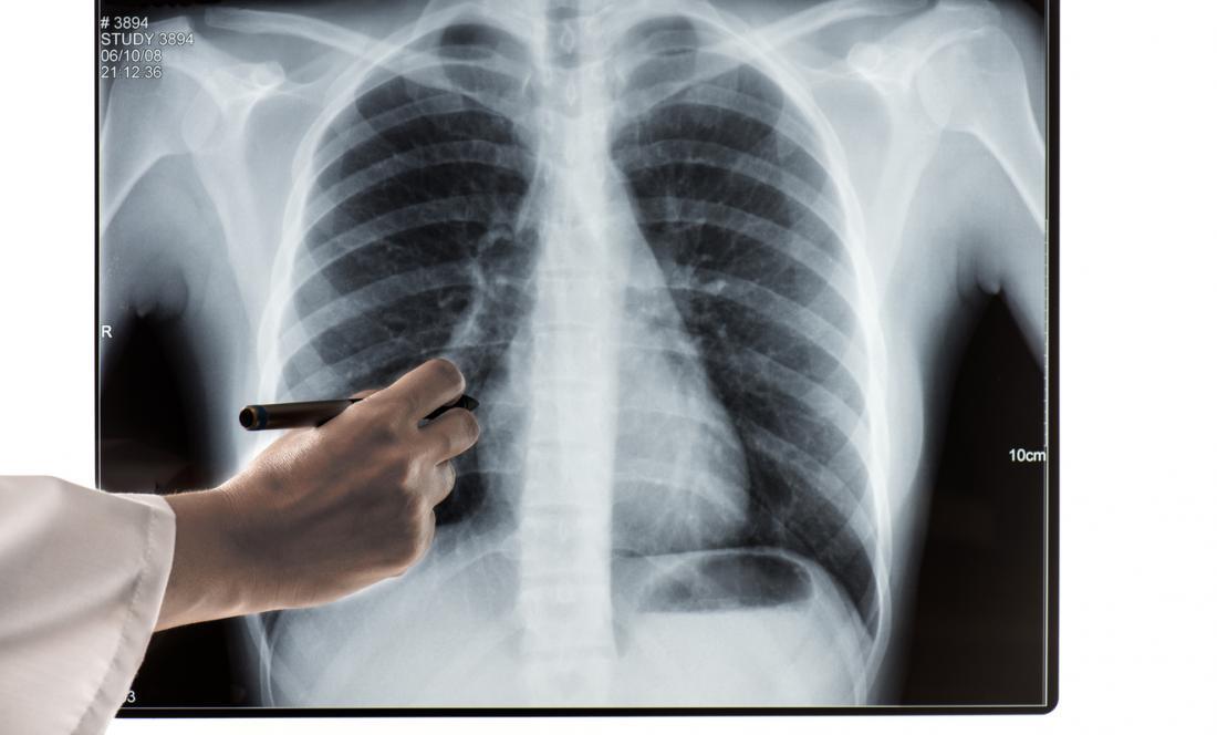 Zdjęcie rentgenowskie klatki piersiowej.