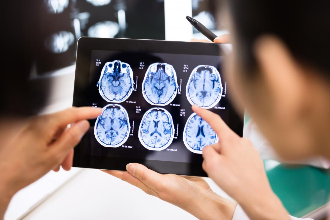 Olhando para exames de ressonância magnética do cérebro no tablet.