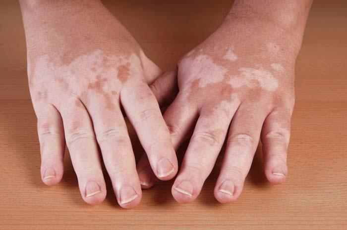 Patch di vitiligine sulle mani