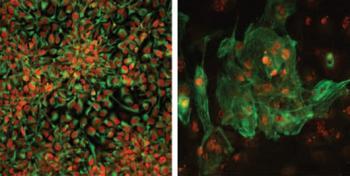 krankheitsfreie Stammzellen